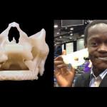 3D печать восстановит лицо молодого человека
