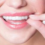 Капы для выравнивания зубов на 3D принтере